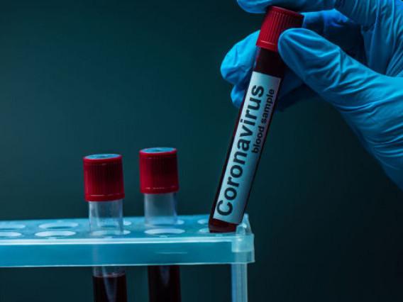 На Волині – 64 нових випадки захворювання на COVID-19