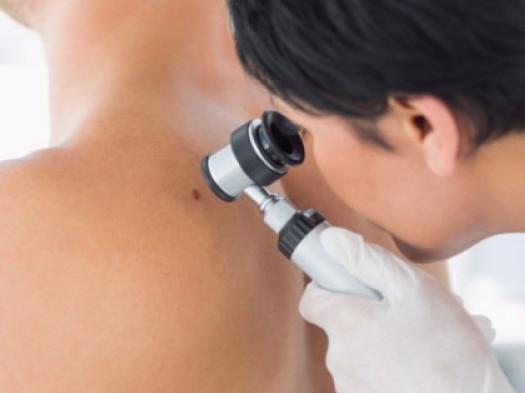 День діагностики меланоми